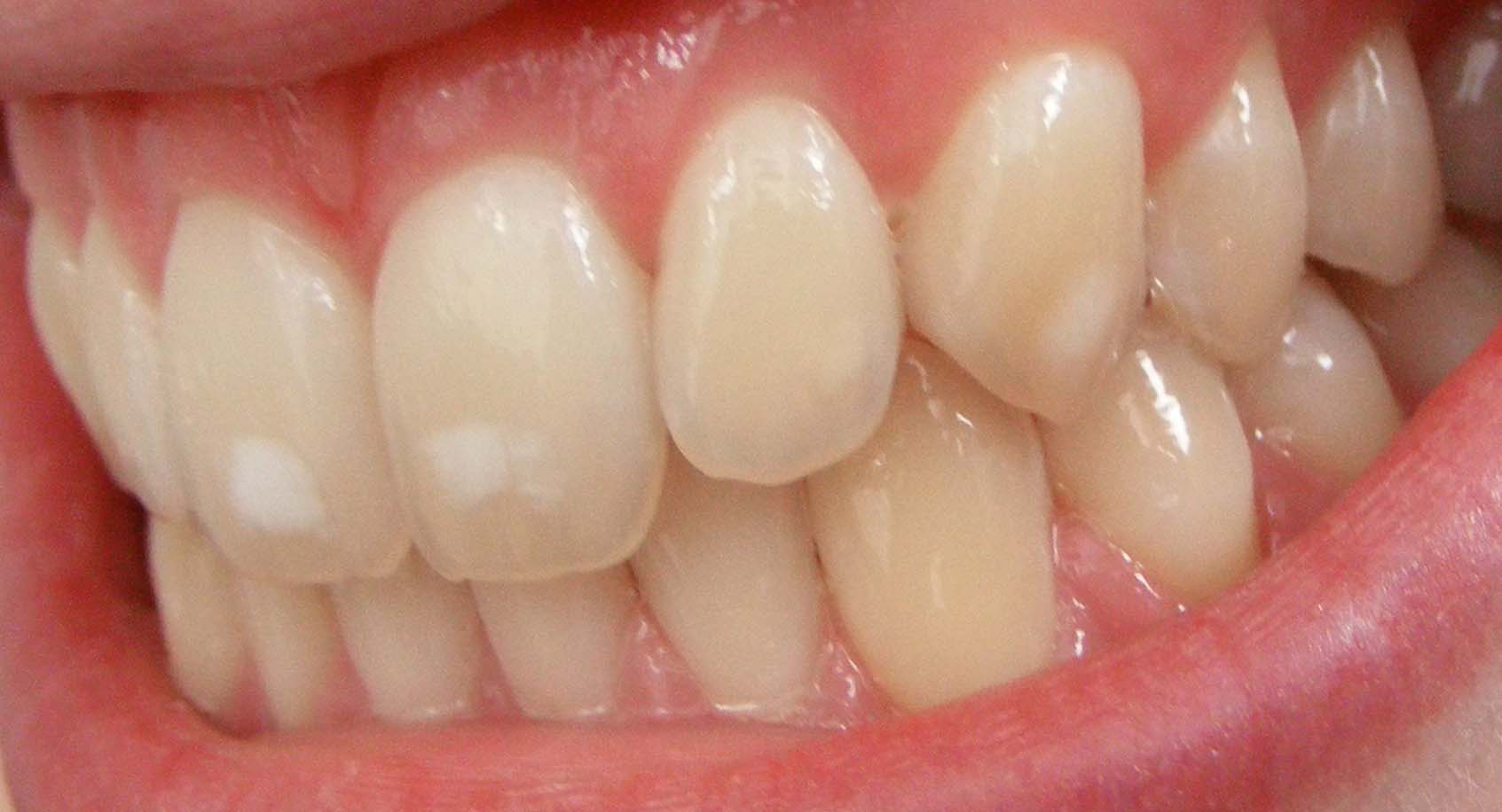 Dental_fluorosis_c)_Matthew_Ferguson