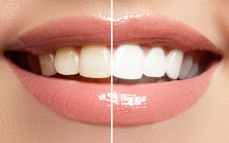 Perfektes Lächeln: Vor und nach dem Bleaching (Foto (c) Fotolia looking2thesky
